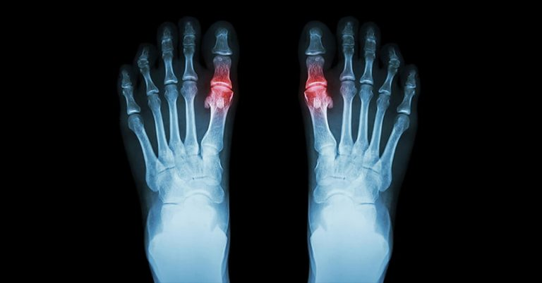 Natural Solutions for Gout